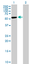 Western blot - CBS antibody (ab88437)