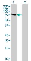 Western blot - Transketolase antibody (ab88438)