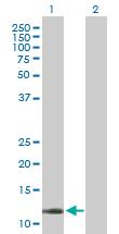 Western blot - COX5B antibody (ab88440)