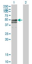 Western blot - LEPRE1 antibody (ab88441)