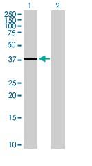 Western blot - ATP6V1C2 antibody (ab88444)