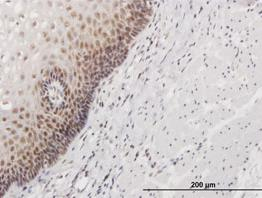Immunohistochemistry (Formalin/PFA-fixed paraffin-embedded sections) - HSPC111 antibody (ab88449)