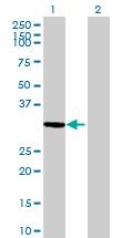 Western blot - TTC35 antibody (ab88466)