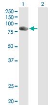 Western blot - NCKIPSD antibody (ab88467)