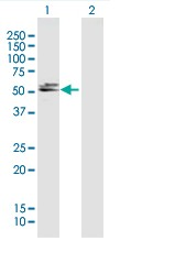 Western blot - DBT antibody (ab88471)