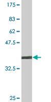 Western blot - FCP1 antibody (ab88479)