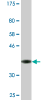 Western blot - MAP3K13 antibody (ab88482)