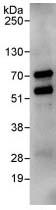 Immunoprecipitation - RIOK2 antibody (ab88485)