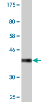 Western blot - CACNA2D2 antibody (ab88486)
