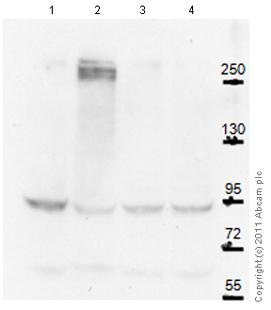 Western blot - Anti-Slit1 antibody (ab88491)