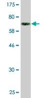 Western blot - RAPGEF5 antibody (ab88492)
