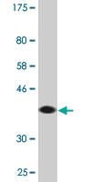 Western blot - RABGAP1L antibody (ab88493)