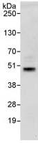 Immunoprecipitation - SIRT6 antibody (ab88494)