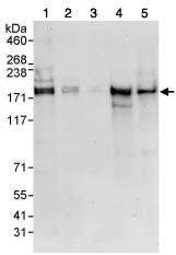Western blot - SIK3 antibody (ab88495)