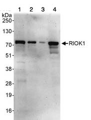 Western blot - RIOK1 antibody (ab88496)