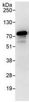 Immunoprecipitation - RIOK1 antibody (ab88496)