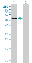 Western blot - Silencer of Death Domain antibody (ab88497)