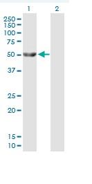 Western blot - Glycerol kinase antibody (ab88505)