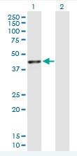 Western blot - TXNDC5 antibody (ab88506)