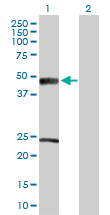 Western blot - ACADM antibody (ab88507)