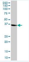 Western blot - Sorbitol Dehydrogenase antibody (ab88509)