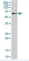 Western blot - Homez antibody (ab88511)