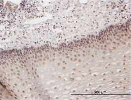Immunohistochemistry (Formalin/PFA-fixed paraffin-embedded sections) - Homez antibody (ab88511)