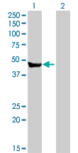 Western blot - Carboxypeptidase A2 antibody (ab88512)