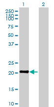 Western blot - calcyphosine antibody (ab88515)