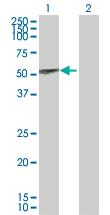 Western blot - UGT1A9 antibody (ab88517)