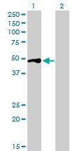 Western blot - BSND antibody (ab88518)