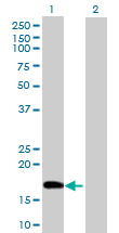 Western blot - DNA Polymerase epsilon antibody (ab88521)