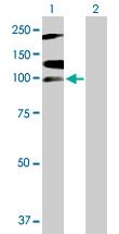 Western blot - RNF111 antibody (ab88535)