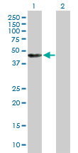 Western blot - Annexin VII antibody (ab88539)