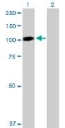 Western blot - Anti-STAT6 antibody (ab88540)