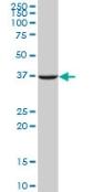 Western blot - Anti-APE1 antibody (ab88541)
