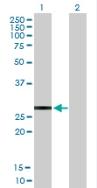Western blot - Anti-KChIP2 antibody (ab88542)