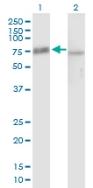 Western blot - Pescadillo antibody (ab88543)