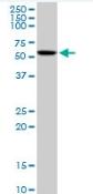 Western blot - CAMKIV antibody (ab88544)