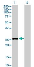 Western blot - PHD3 antibody (ab88582)