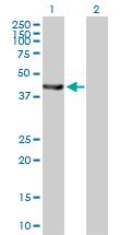 Western blot - Epoxide hydrolase antibody (ab88585)