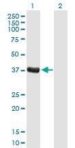 Western blot - Dppa4 antibody (ab88586)