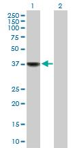 Western blot - Biliverdin Reductase antibody (ab88587)