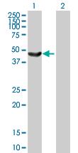 Western blot - SNF5 antibody (ab88589)