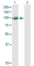 Western blot - DAB2 antibody (ab88590)