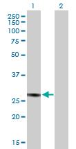 Western blot - GC1q R antibody (ab88591)