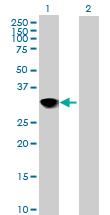Western blot - CENPH antibody (ab88593)