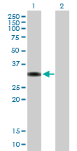 Western blot - TZFP antibody (ab88594)