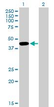 Western blot - TFIISH antibody (ab88595)