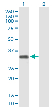 Western blot - FCRLB  antibody (ab88596)